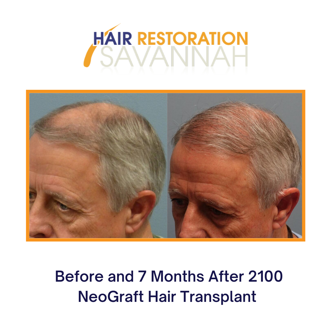 Before and 6 Months after 2100 NeoGraft Hair Transplant