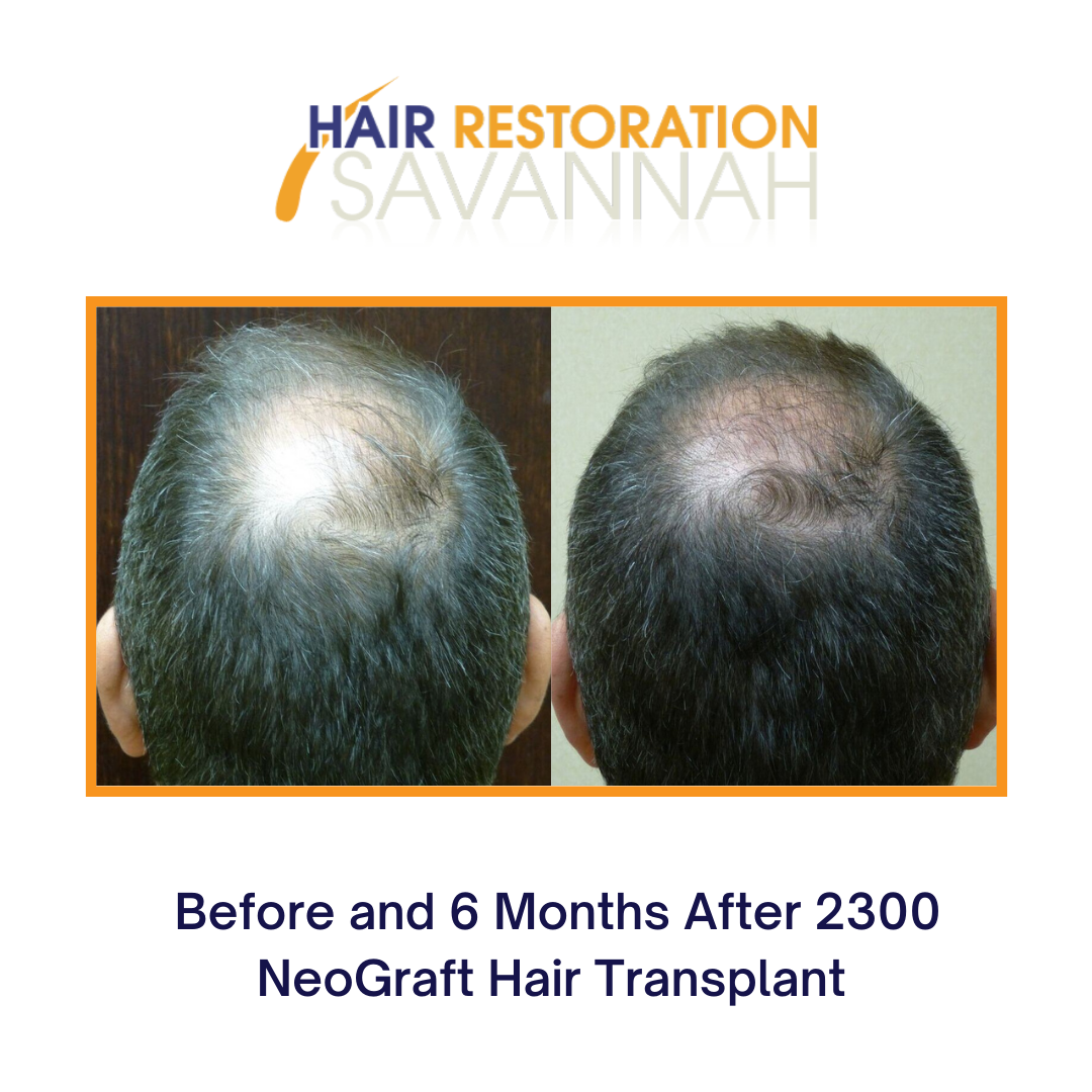 Before and 6 Months after 2300 NeoGraft Hair Transplant