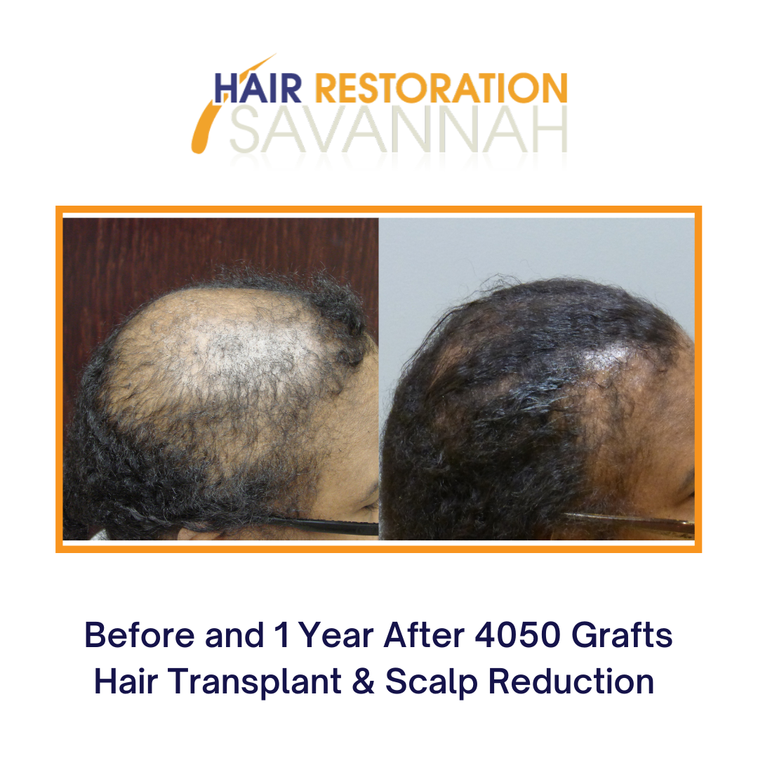 Before and after 2 Neografts and scalp reduction by Dr. E. Ronald Finger