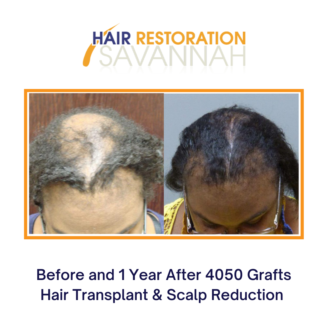 Before and after hair restoration by Dr. E. Ronald Finger