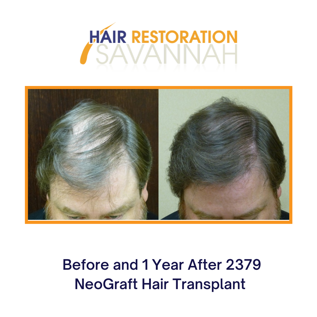 Before and 1 Year After 2379 NeoGraft Hair Transplant