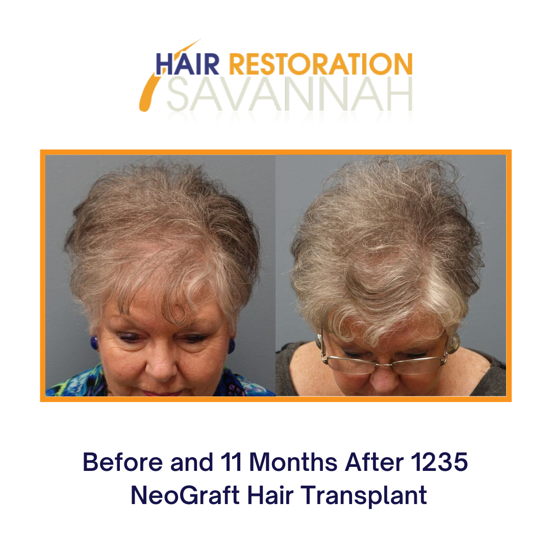 Before and After 1235 NeoGraft Hair Transplant