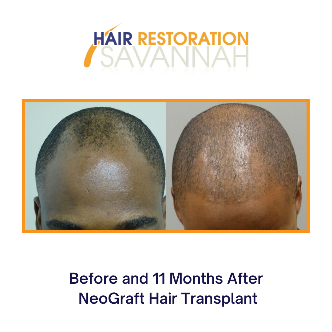 Before and 11 Months After NeoGraft Hair Transplant