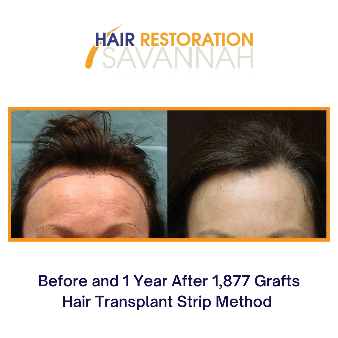 Before and after Strip Method of hair restoration
