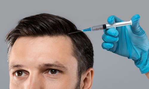 Mesotherapy for hair. Closeup of young man getting injections in head, grey panorama background. Millennial man having mesotherapy session at beauty salon, therapist in protective glove with syringe